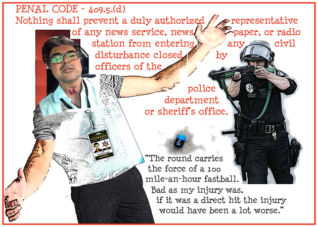 Essay: Pop. Impact. Run. What Happened When Long Beach Police Shot Our Reporter With Foam Round