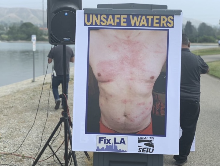 22 LA Lifeguards Went For A Swim And Got Bacterial Infections. They're Blaming The City: LAist