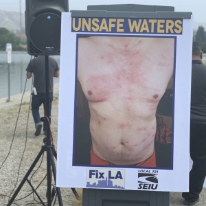 24 LA Lifeguards Went For A Swim And Got Bacterial Infections. They're Blaming The City